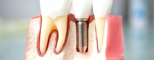 Стоматология зубы Протезирование Имплантация